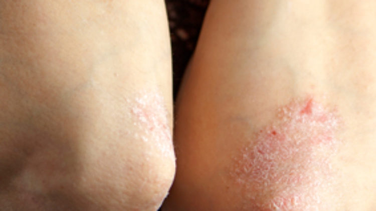 Plaque Psoriasis Clinical Trial