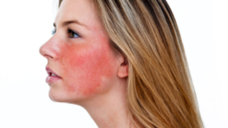 Rosacea Trial Still Accepting Applicants